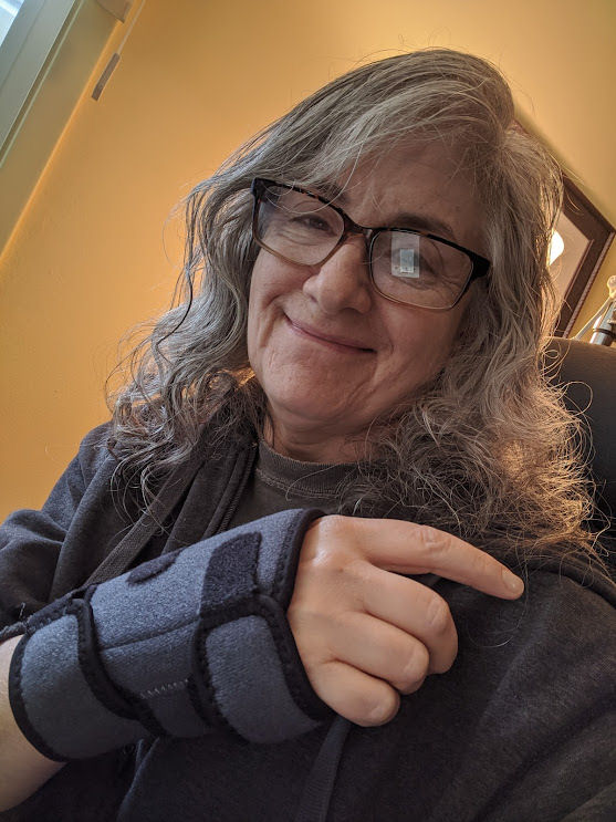 How can I exercise with limited mobility? My right wrist took the brunt of a fall.